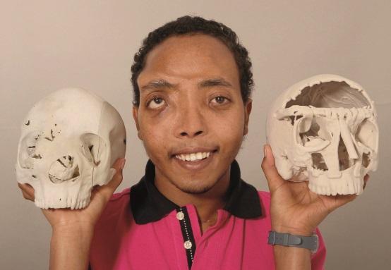 Fünf-Kilo-Gesichtstumor entfernt: Der Mann ohne